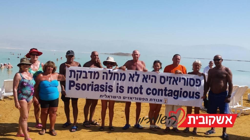 פסוריאזיס היא לא מחלה מדבקת צילום: אגודת הפסוריאזיס הישראלית
