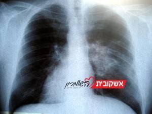 יום המודעות הבינלאומי למחלת ה - COPD